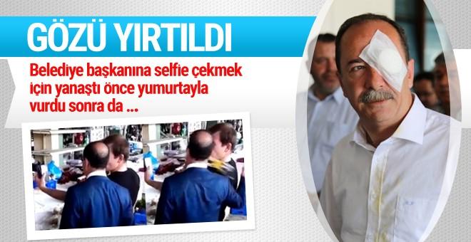 Edirne Belediye Başkanı Recep Gürkan'a saldırı